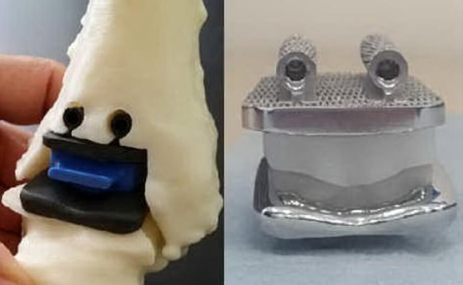 una simulazione della protesi e la protesi in lega (foto istituto rizzoli)
