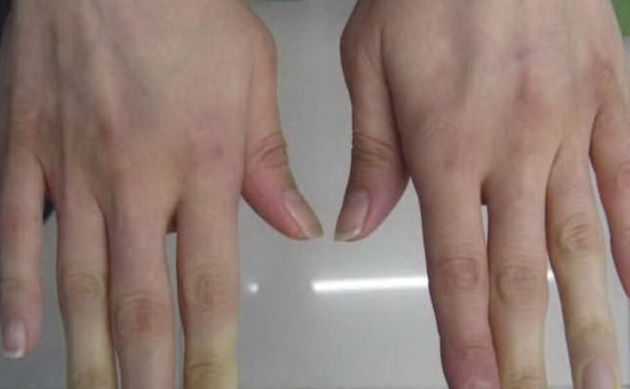 mani con sclerosi sistemica (foto dal sito aifi net)