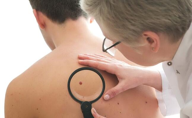 un dermatologo controlla un neo