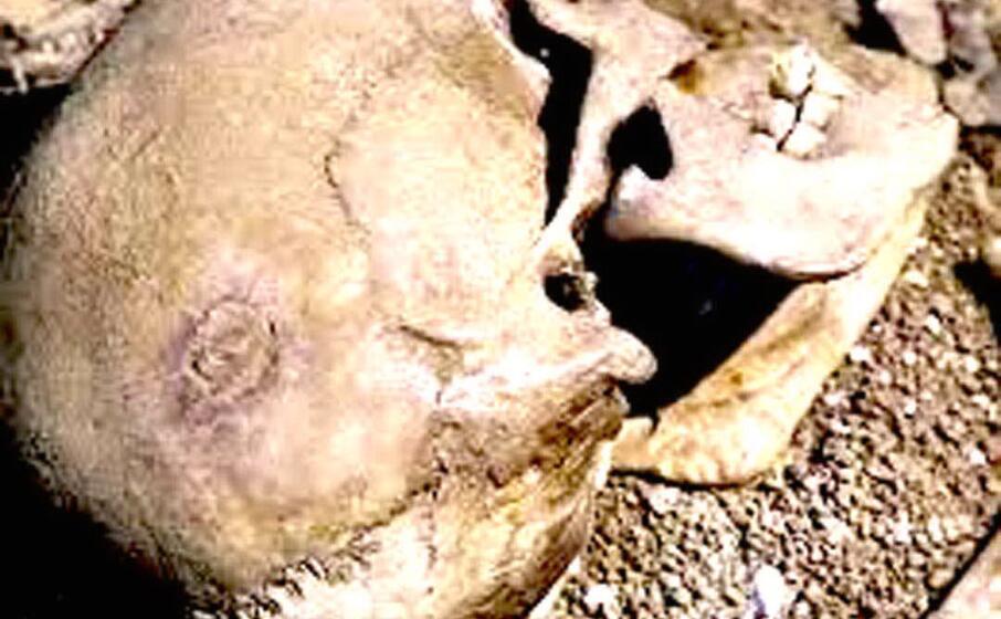 il particolare del cranio si vede il cerchio perfettamente cicatrizzato