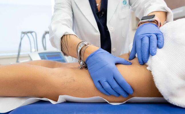 la cellulite riguarda il 90 per cento della popolazione femminile