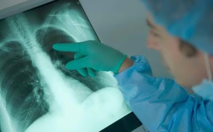 la lettura di una radiografia (archivio u s )